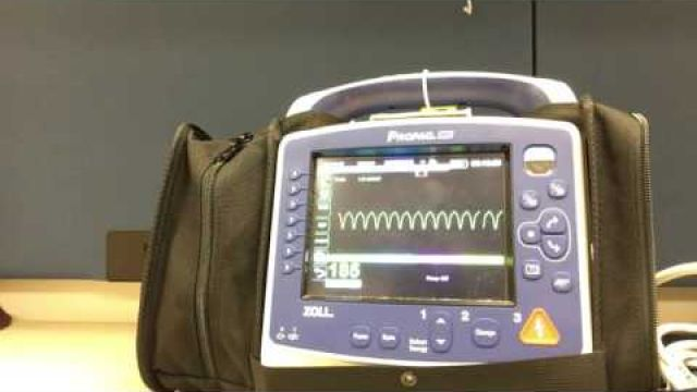 Synchronized Cardioversion with Propaq MD