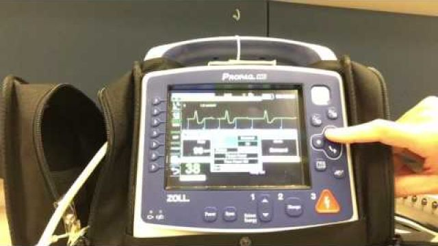 Pacing with Propaq MD